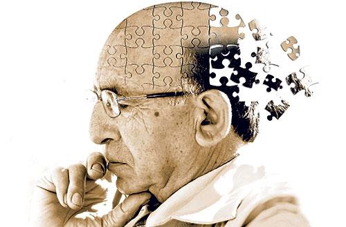 Alzheimer'ın 10 belirtisi ve tedavi yöntemleri galerisi resim 1