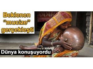 BEKLENEN MUCİZE GERÇEKLEŞTİ!