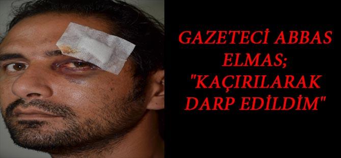 """GAZETECİ ABBAS ELMAS; """"KAÇIRILARAK  DARP EDİLDİM"""""""