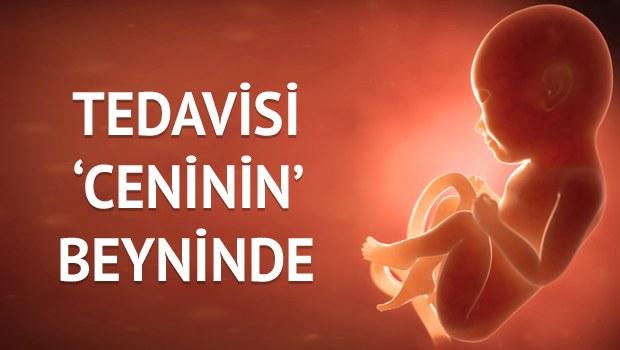 TEDAVİSİ CENİNİN BEYNİNDE!
