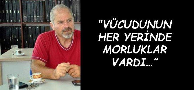 """""""VÜCUDUNUN HER YERİNDE MORLUKLAR VARDI…"""""""