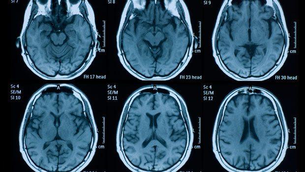 Transseksüel gencin beyin MR'ı doktorları şaşırttı