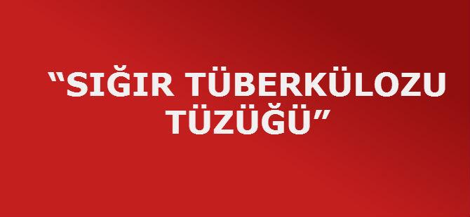 """""""SIĞIR TÜBERKÜLOZU TÜZÜĞÜ"""""""
