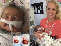 5 aylık bebeğin kalbini aldılar