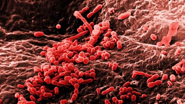 160323121958_bacteria_on_skin.jpg