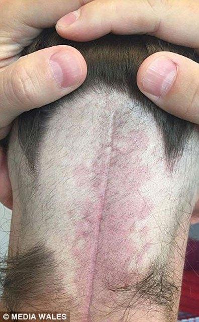 olumcul-tumoru-sosyal-medyadan-ogrendi-7723283.jpeg